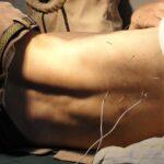 Comment devenir acupuncteur ?